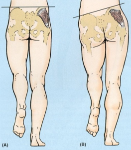 Left shows gluteus medius functioning to keep the pelvis in neutral. Right shows right glute med dysfunction causing the left hip to drop when standing on the right limb.